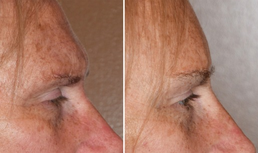 GE Brow Bone Reduction result side view Dr Barry Eppley Inddianapolis